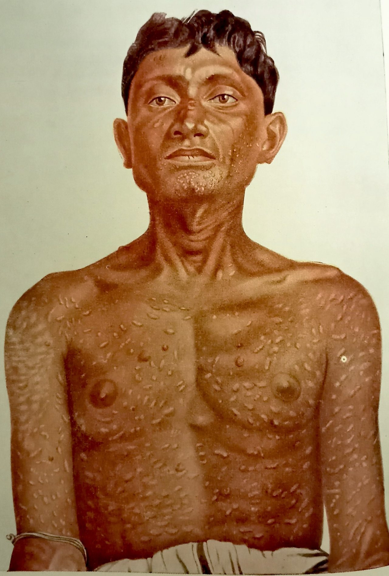 Figure 5. Brahmachari's Dermal Leishmaniasis (From 'Gleanings From My Researches', by Upendranath Brahmachari, Calcutta University Press, 1940)