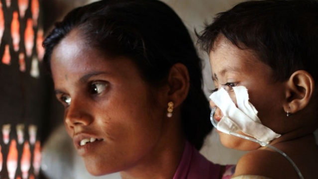 India's Malnutrition Problem Is Not Going Away Anytime Soon Despite Intervention