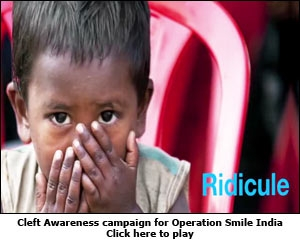Cleft Awareness campaign for Operation Smile India
