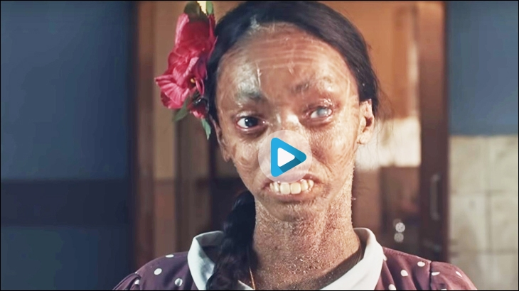 Vicks aims to break the taboo around skin diseases by narrating the story of Nisha, a young girl with a rare genetic skin condition - Ichthyosis