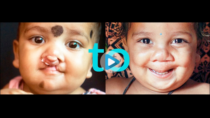 #CleftToSmile released by Operation Smile in 2015