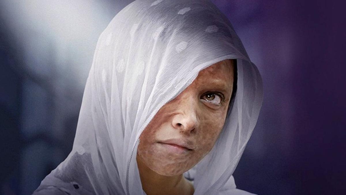 Punjab screens 'Chhapaak' for acid attack survivors