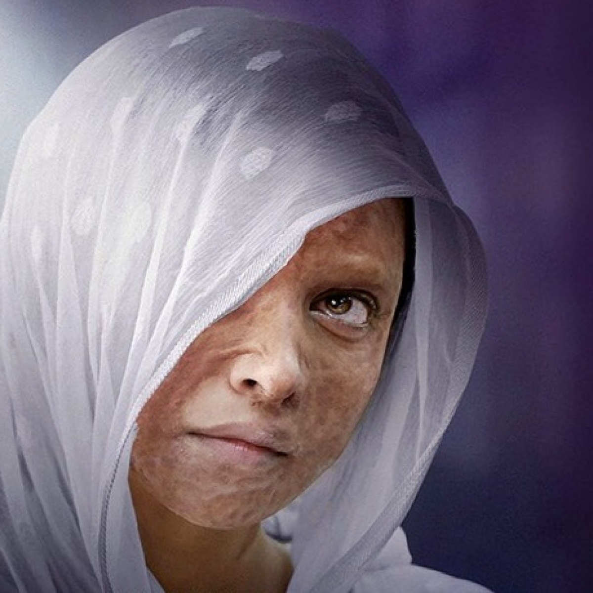 Punjab screens 'Chhapaak' for acid attack survivors