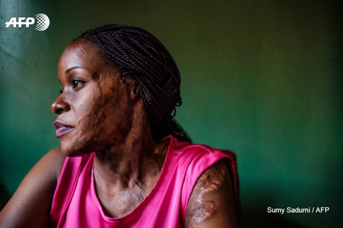 Linette Kirungi, a acid attack survivor from Uganda.
