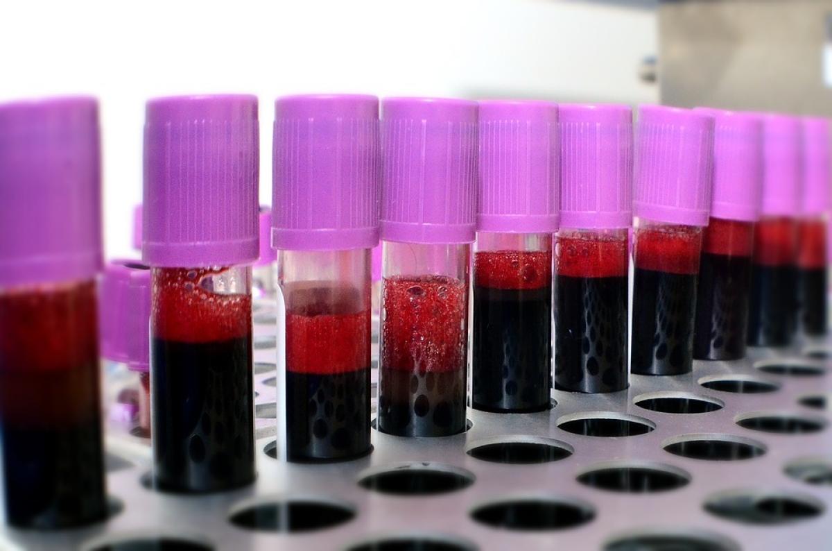 Madhya Pradesh: Sagar collector orders probe into black-marketing of blood