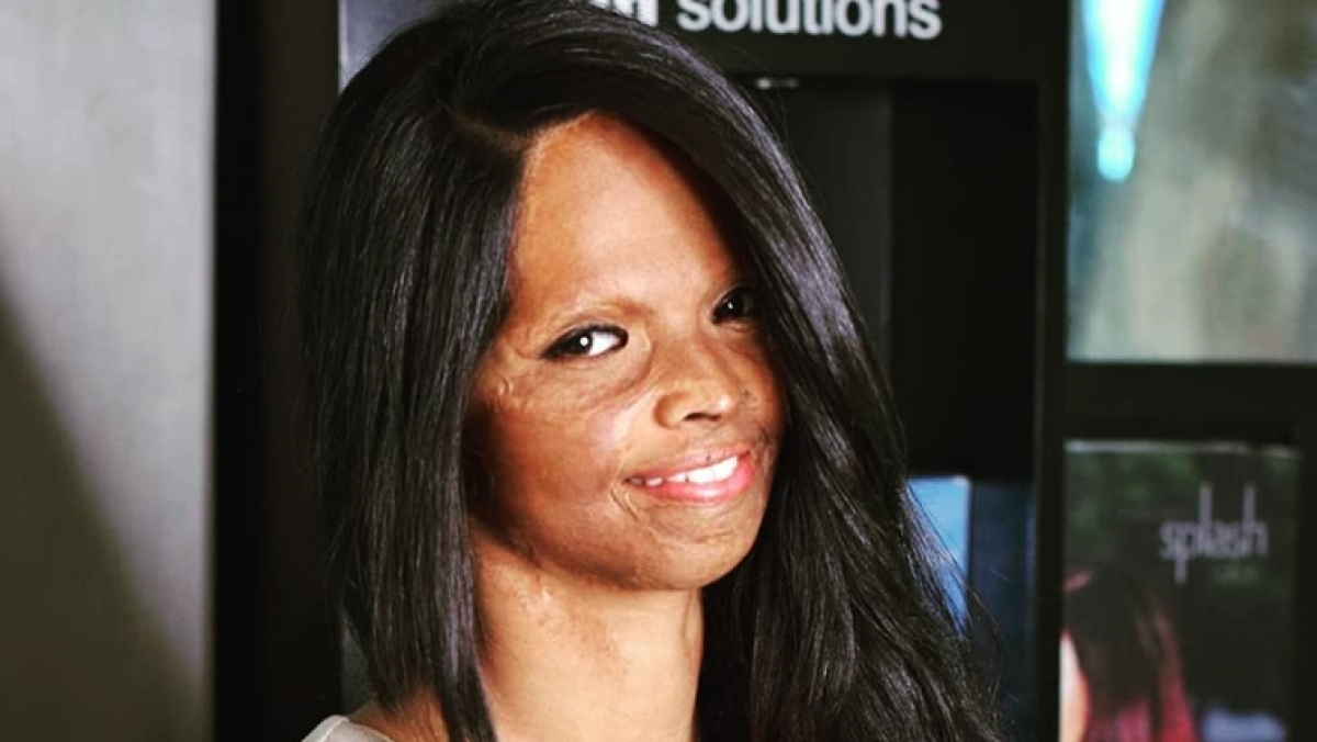 Did TikTok mute Laxmi Agarwal criticising Faizal Siddiqui's acid attack video?