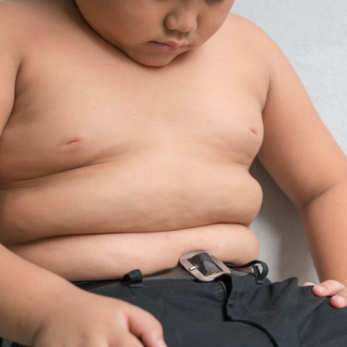 Childhood obesity may increase bladder cancer risk