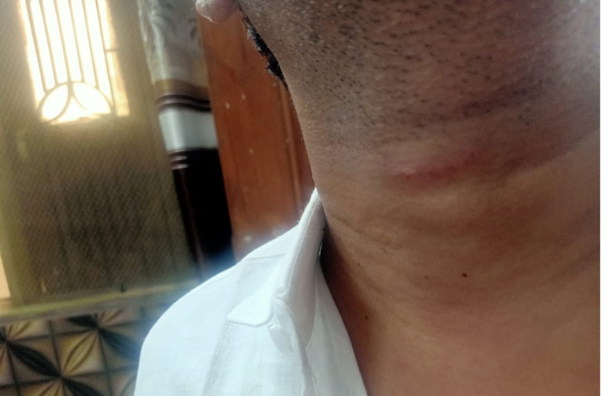 Victim sustaining injuries after being manhandled by cops