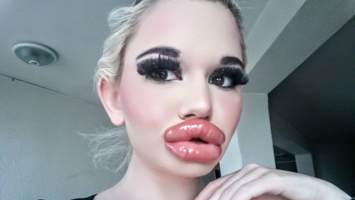 World's biggest lips: 22-year-old woman from Bulgaria is going viral for her mighty pout