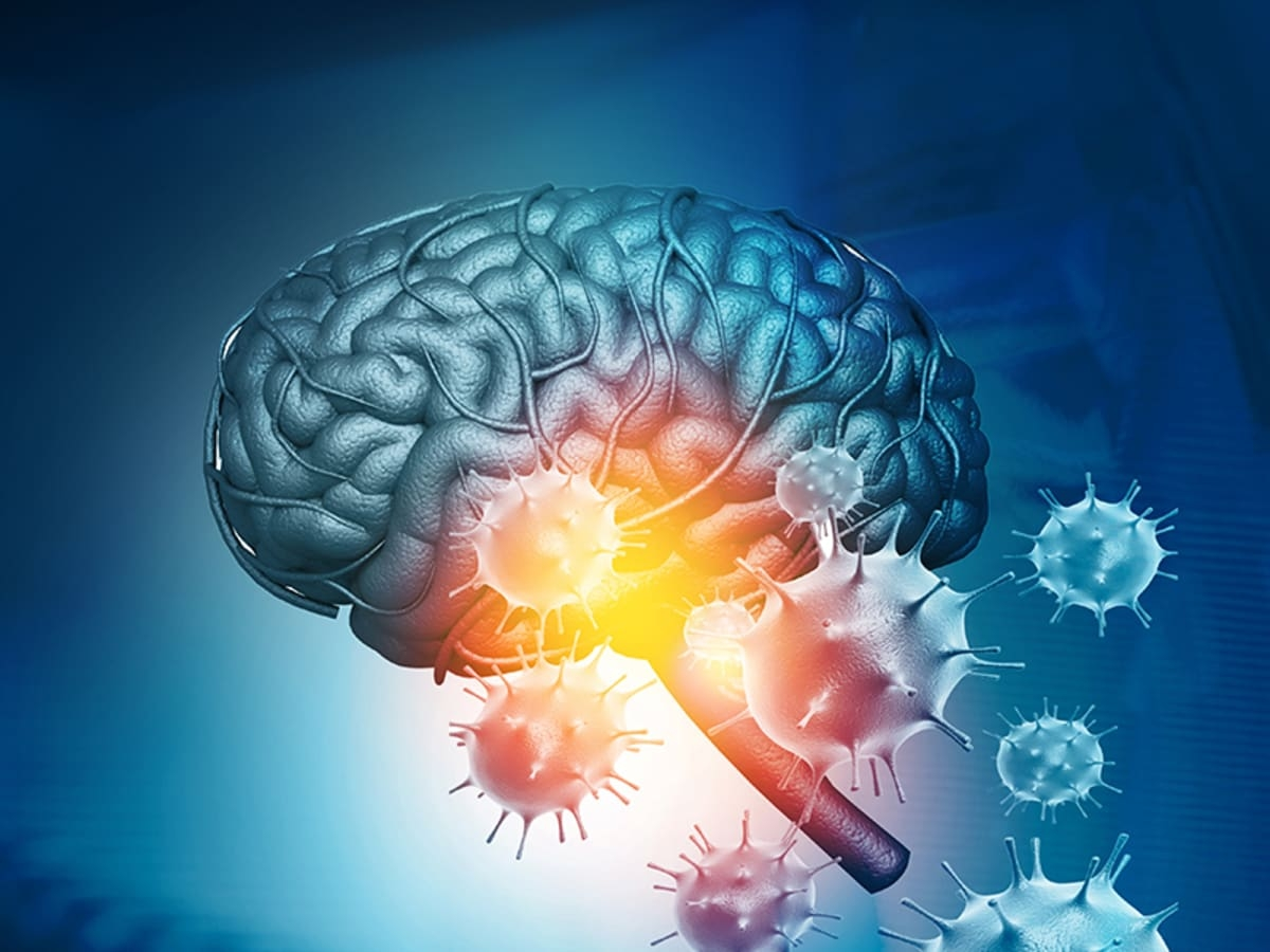 Covid-19 linked to altered mental state, other brain issues