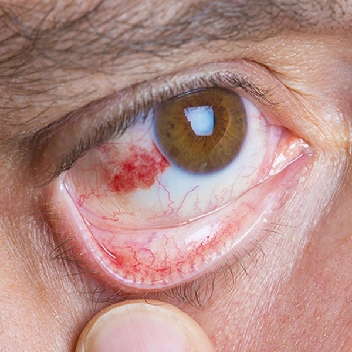 Is conjunctivitis a symptom of COVID-19? Here's all you need to know