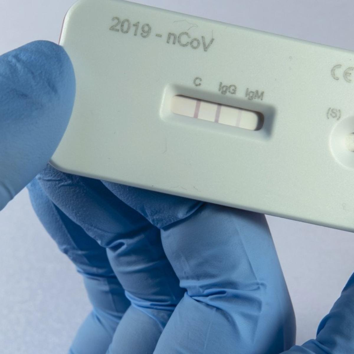 Coronavirus in Mumbai: BMC ready to start antigen testing in all its dispensaries