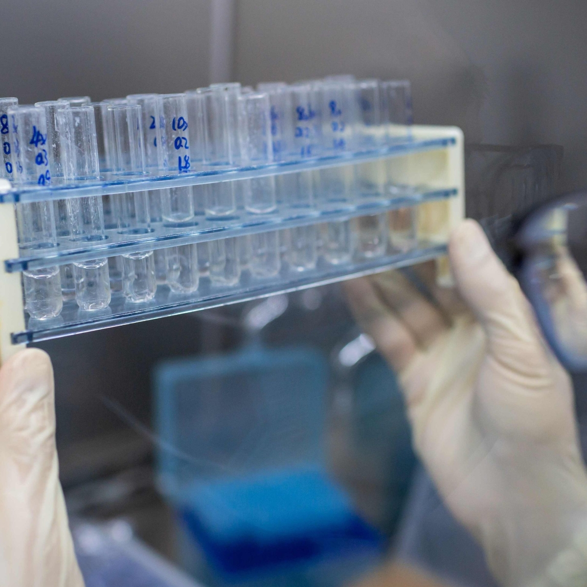 COVID-19 vaccine update: Russia promises to deliver vaccine to all by September 14