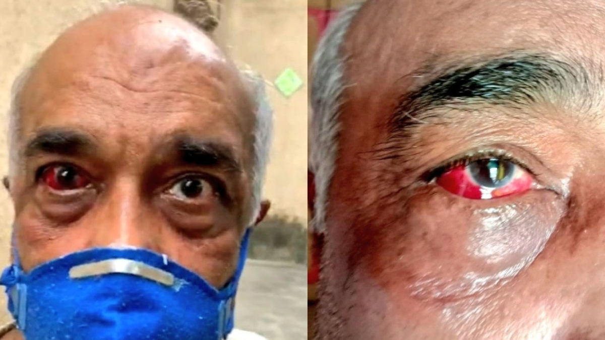 Ex-Navy officer attacked: After granting bail, Samta Nagar police arrests six Shiv Sena workers again