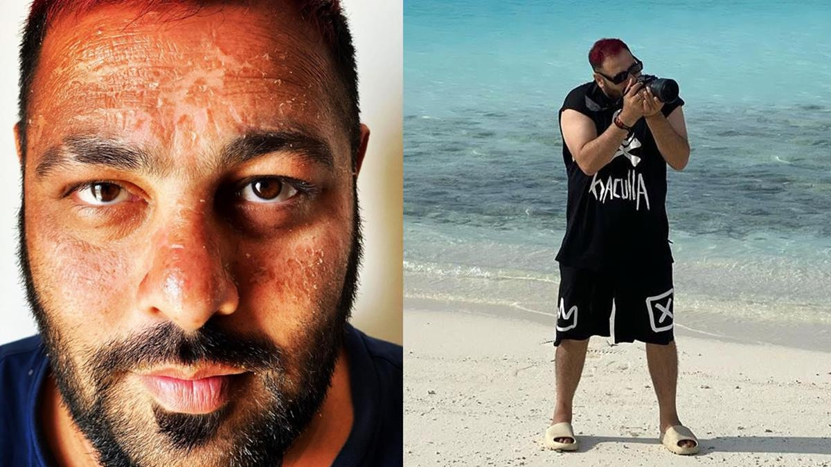 B-town shocked after rapper Badshah shares a sunburnt picture of himself