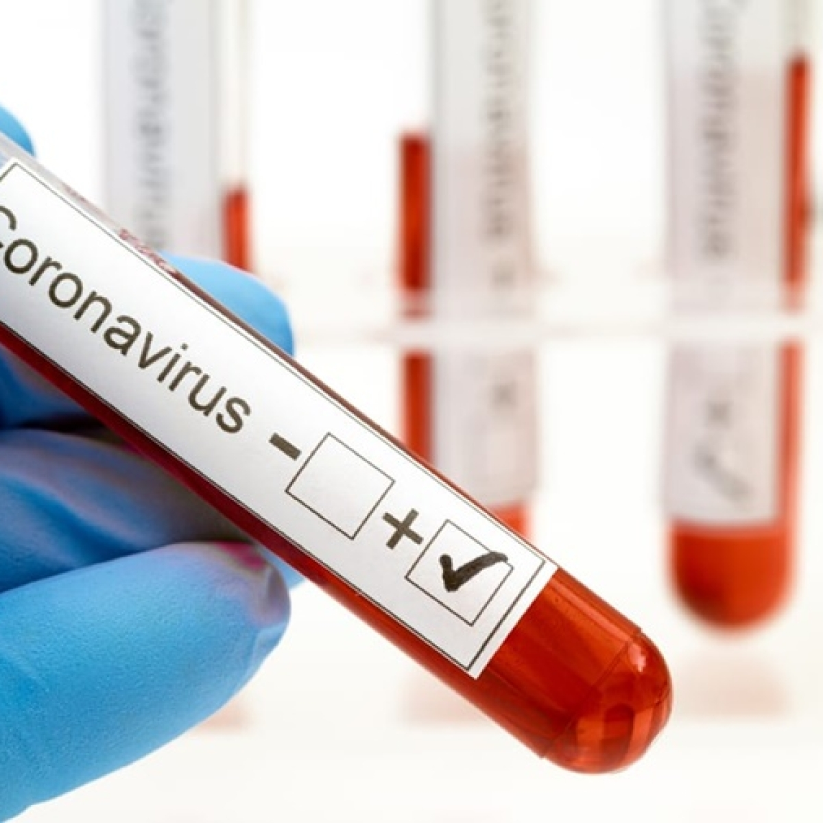 Maharashtra: COVID-19 positive Nagpur man with UK travel history suspected of carrying new virus strain