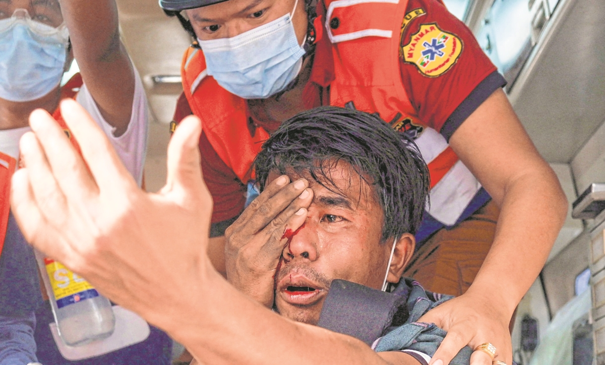 A man injured in his eye after being hit with a slingshot fired by security forces is treated by a medical team following a demonstration against the military coup in Mandalay on February 20, 2021.