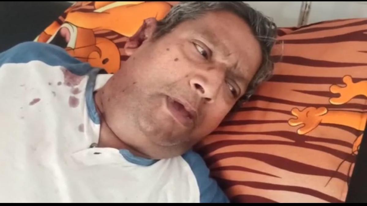 Khargone: Chain snatchers beat senior citizen, hospitalised; police clueless