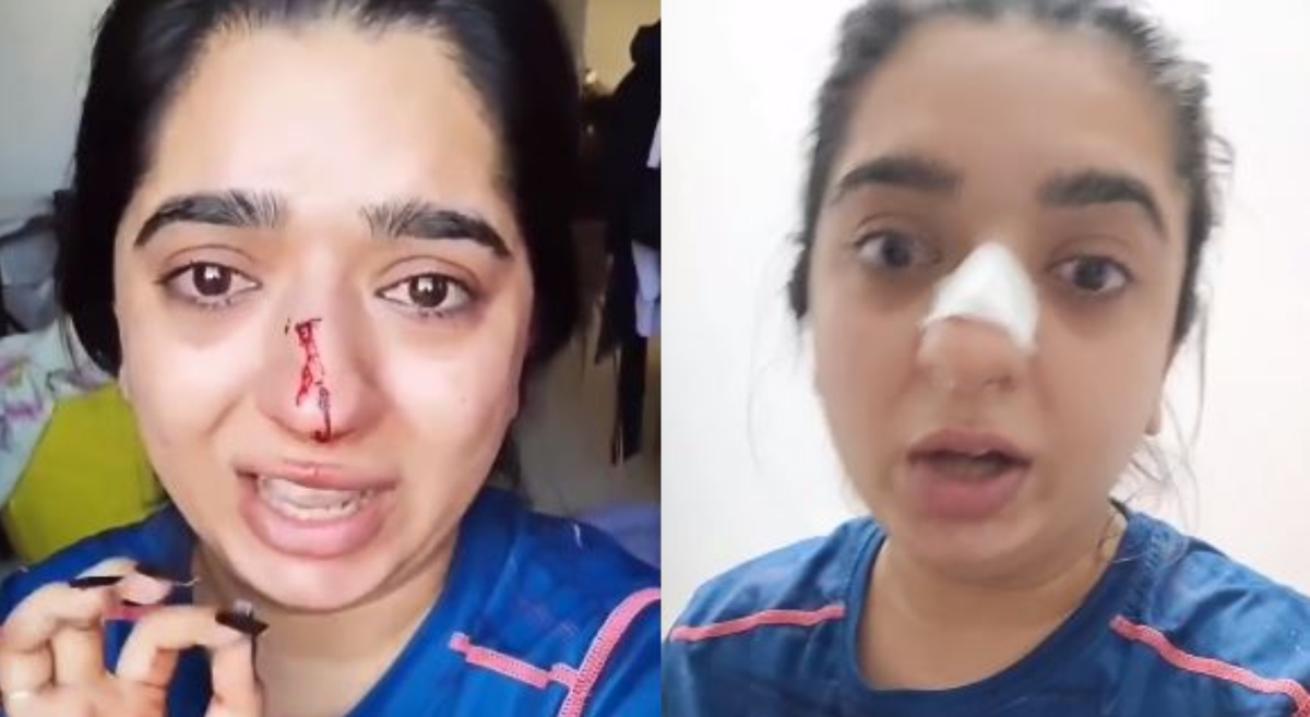 'Punched me on my face': Bengaluru woman alleges assault by Zomato delivery man after argument over late delivery