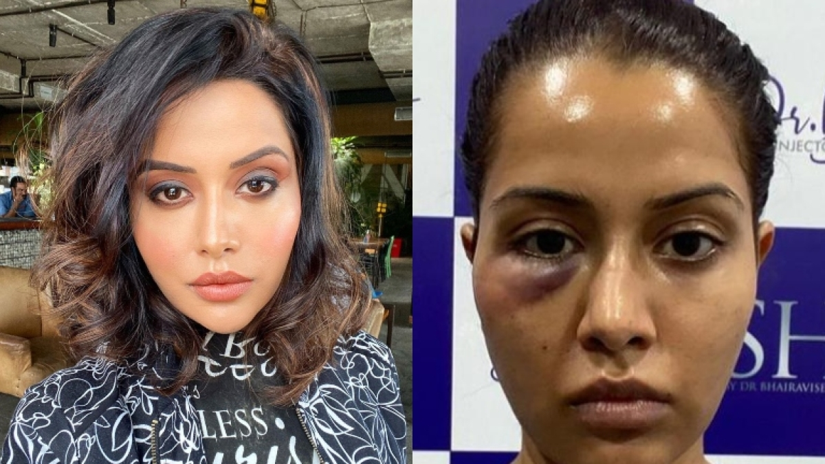 Tamil actress Raiza Wilson blasts dermatologist after treatment goes wrong, says she was 'forced'