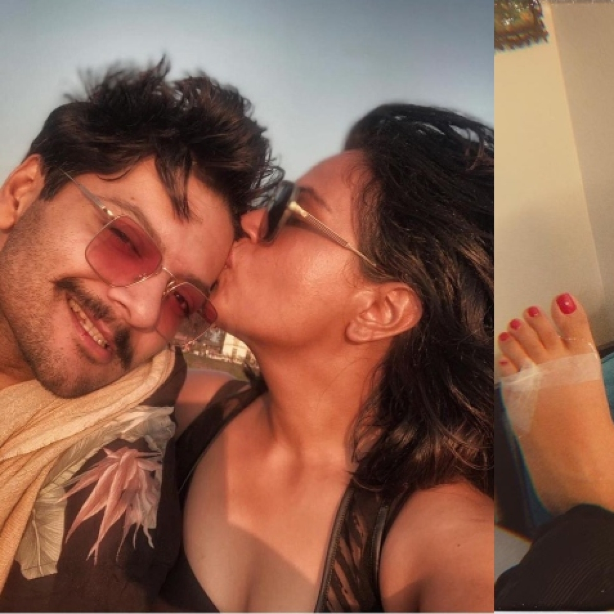 'In sickness and in health': Richa Chadha, who fractured her foot, thanks beau Ali Fazal for all the care