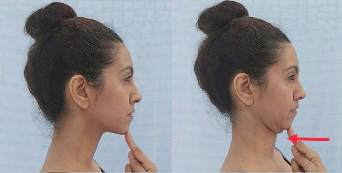 Chin Tuck Exercise: From your natural neck position tuck your chin back as  if you are trying to give yourself a double chin. Hold this position for five seconds and then repeat 10 times. Awareness of your chin position should be corrected multiple times a day in order to correct the habit.