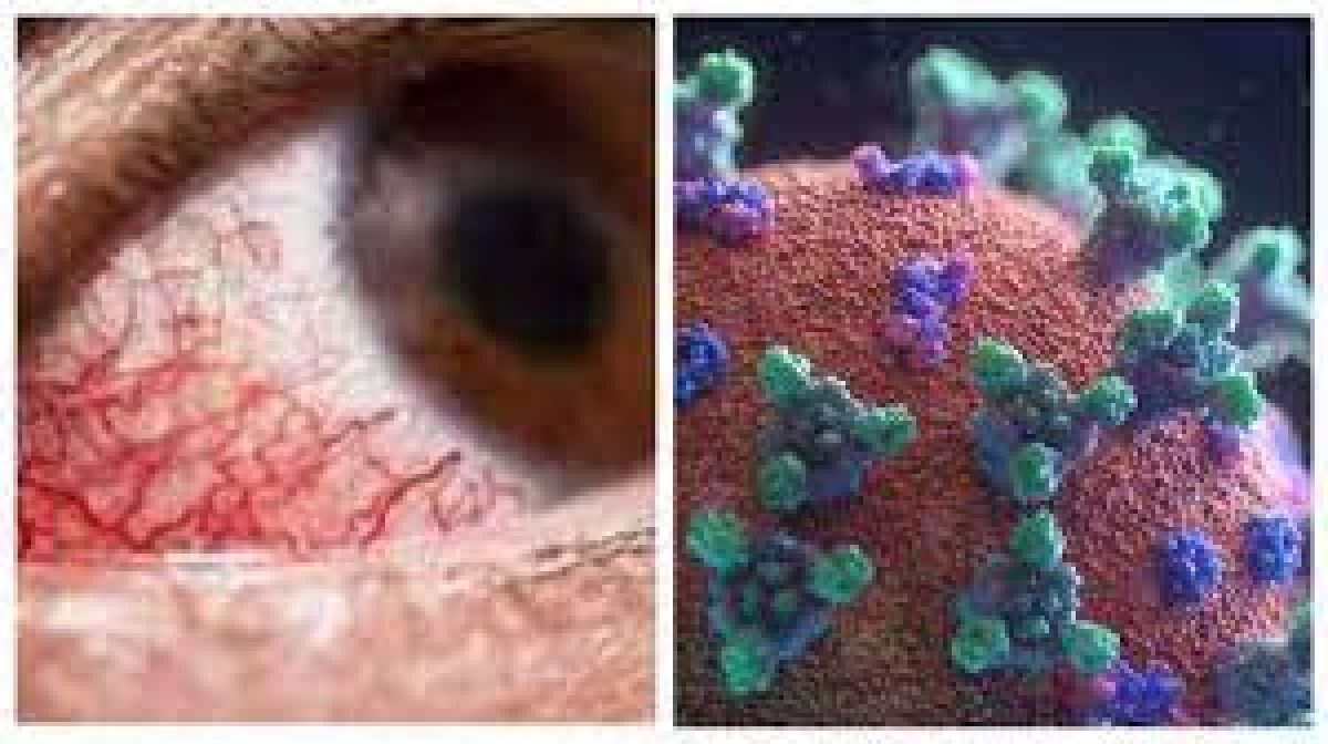 Madhya Pradesh: Dhar district reports 15 Mucormycosis cases so far