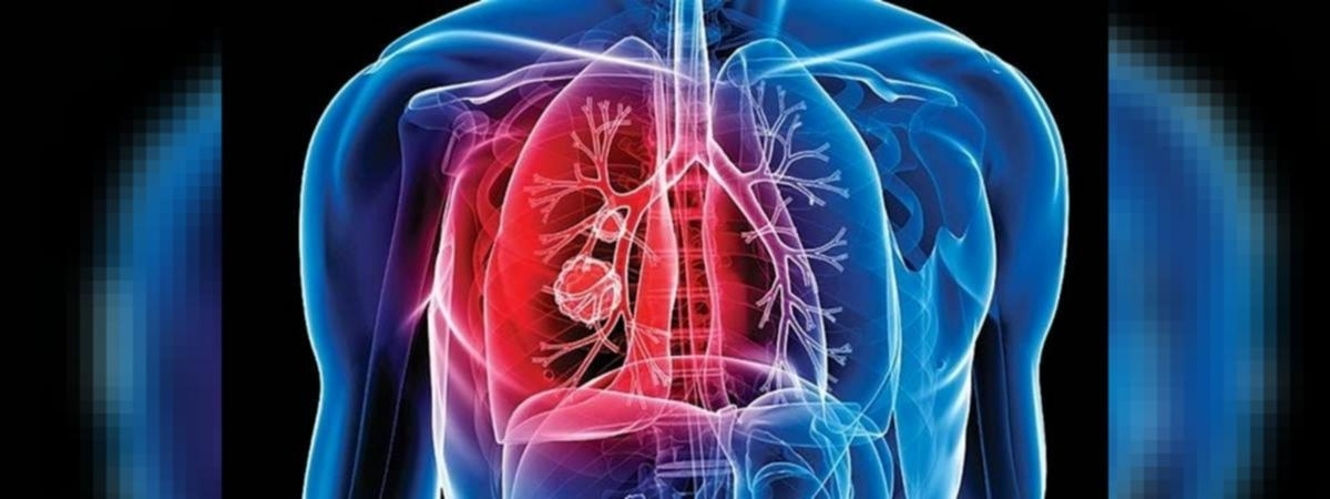 TB case notification drops by 30% in Maharashtra