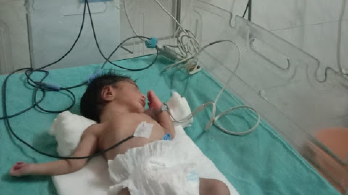 The  baby, who was born on Mother's Day during second wave of corona in RDGMCH in Ujjain.