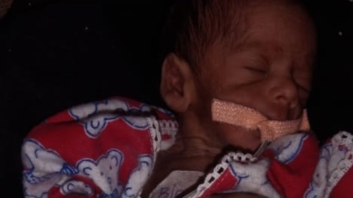 MYH RATTLED: Rodent Nibbles on newborn's toes born in Indore hospital