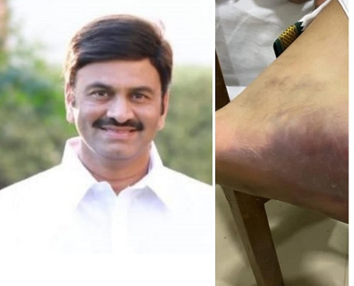 SC asks Army hospital to examine YSR Cong MP tortured in custody