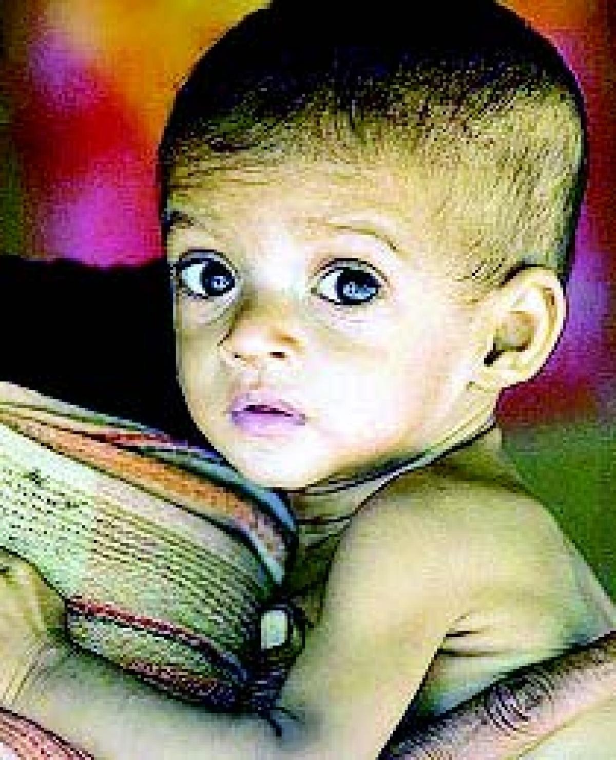 Malnutrition kills six more, after CS' visit