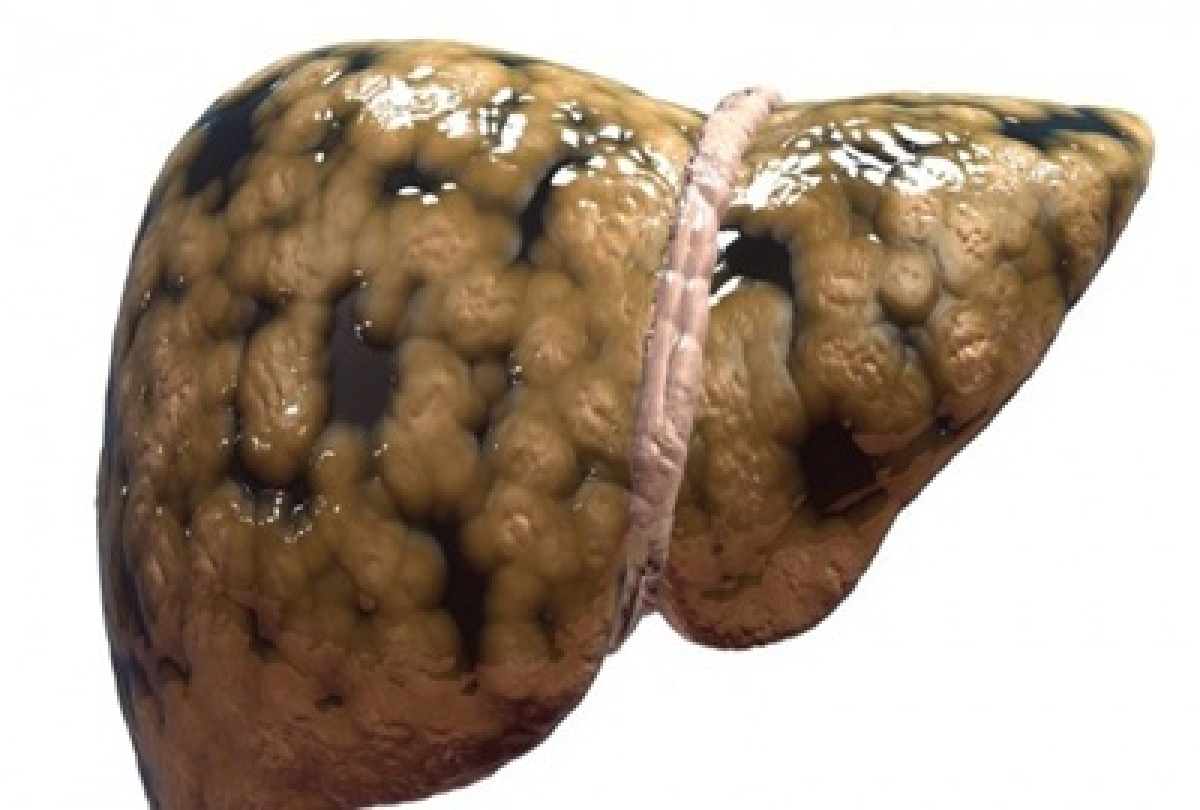 New approach to treat fatty liver disease