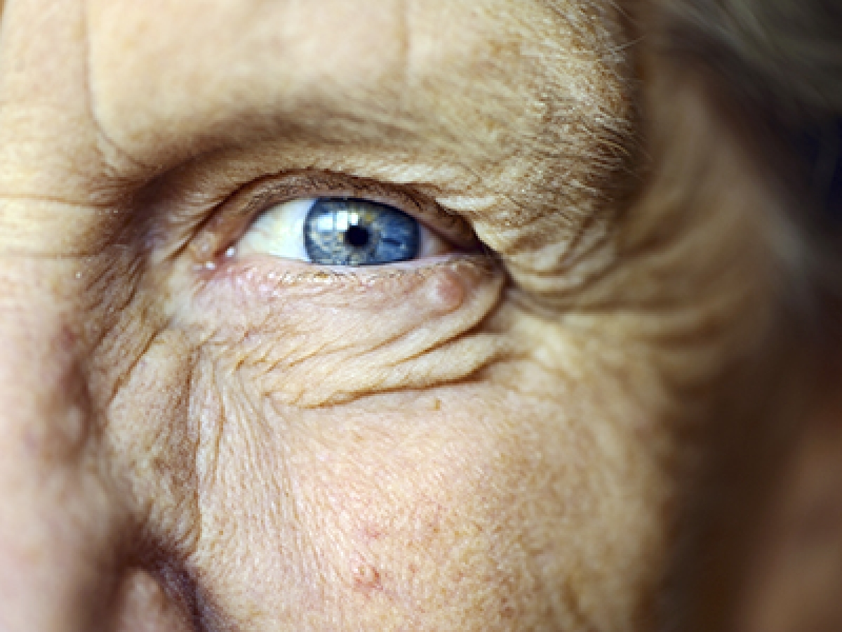 High-dose statin treatment can help restore sight