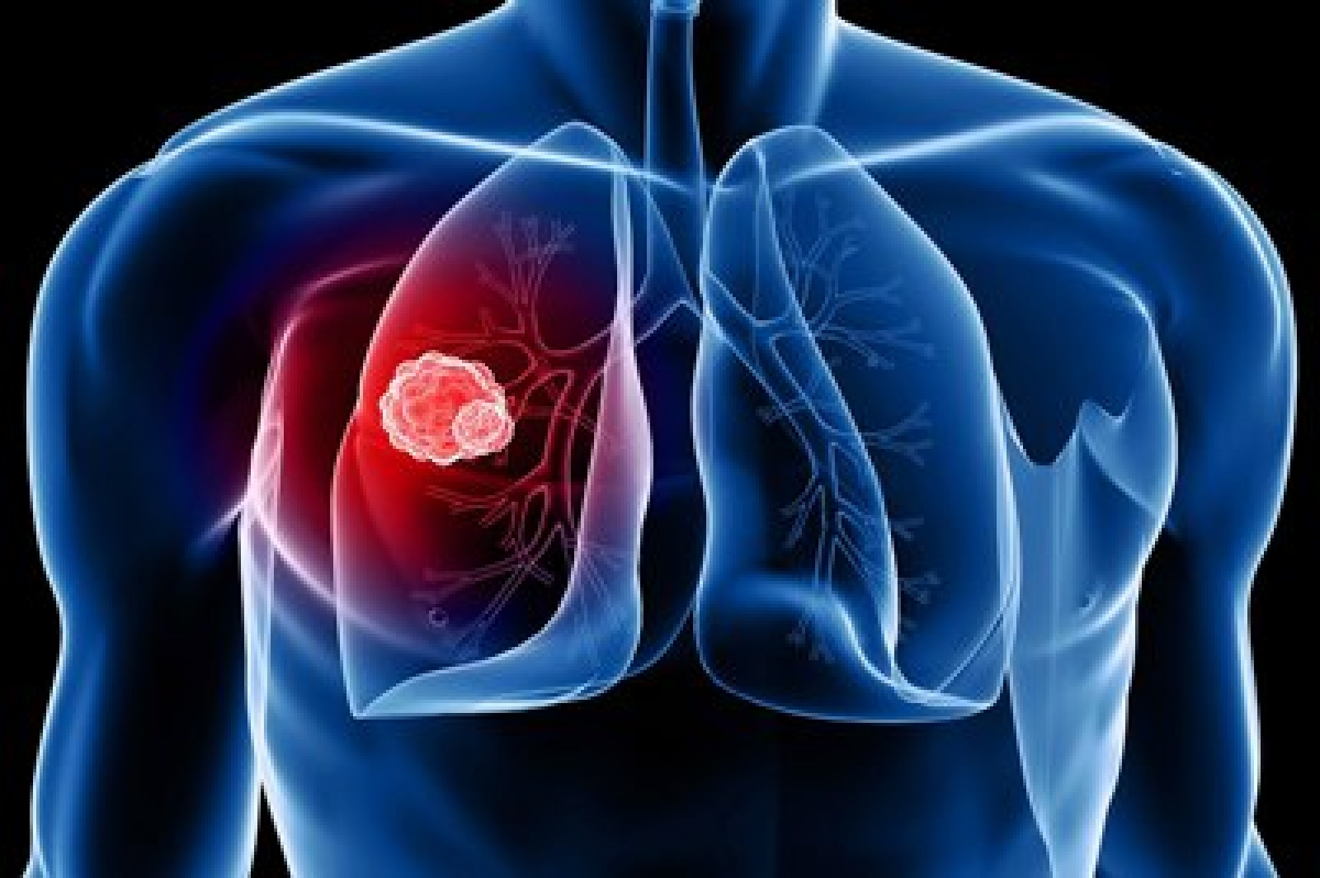 Air pollution reduces life span of lung cancer patients