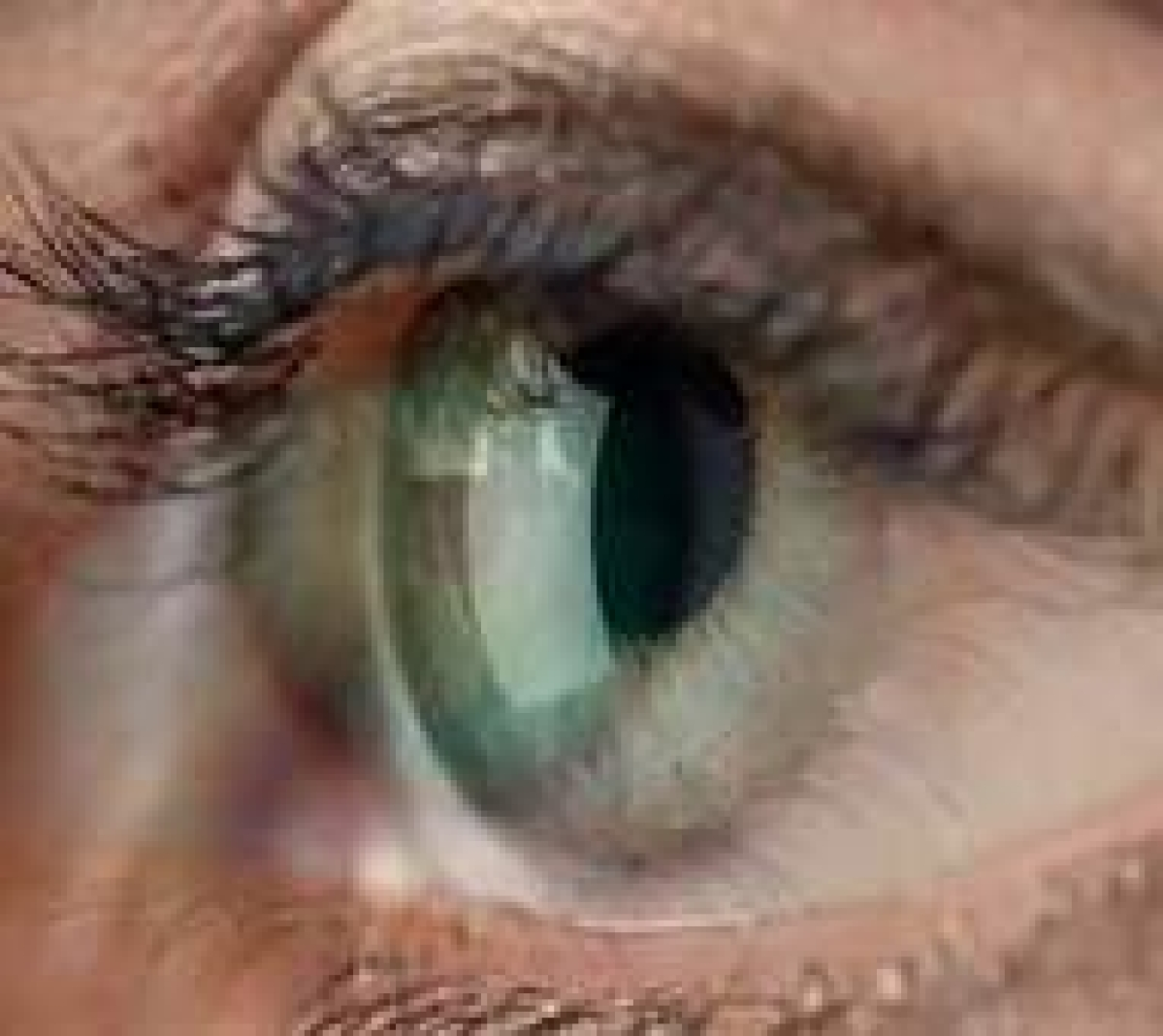 Vitamin C rich diet may slow down cataracts
