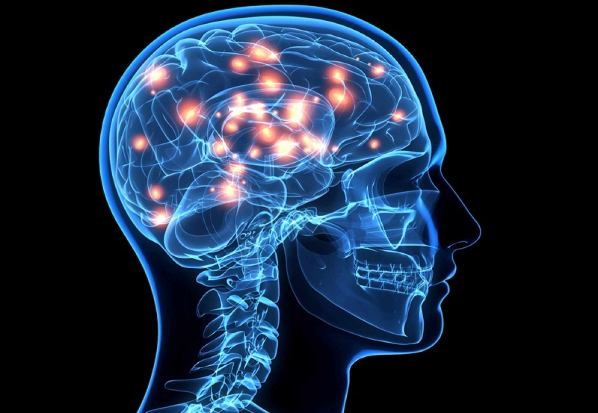 Larger brains prone to mental disorders