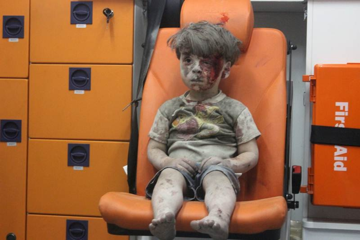 US calls dazed boy 'the real face' of Syria's war