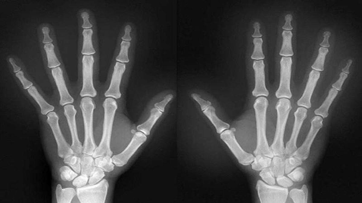 How X-ray damages DNA, causes cancer decoded