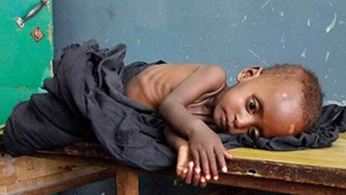 Bhopal: 'Unknown reasons' led to death of 87% kids
