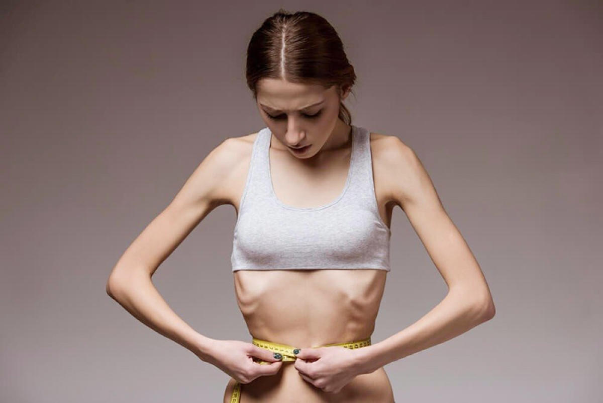 Autistic traits are clearly visible in anorexic women