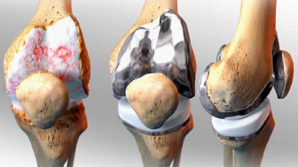 Maiden attempt at total knee replacement surgery in Ujjain successful