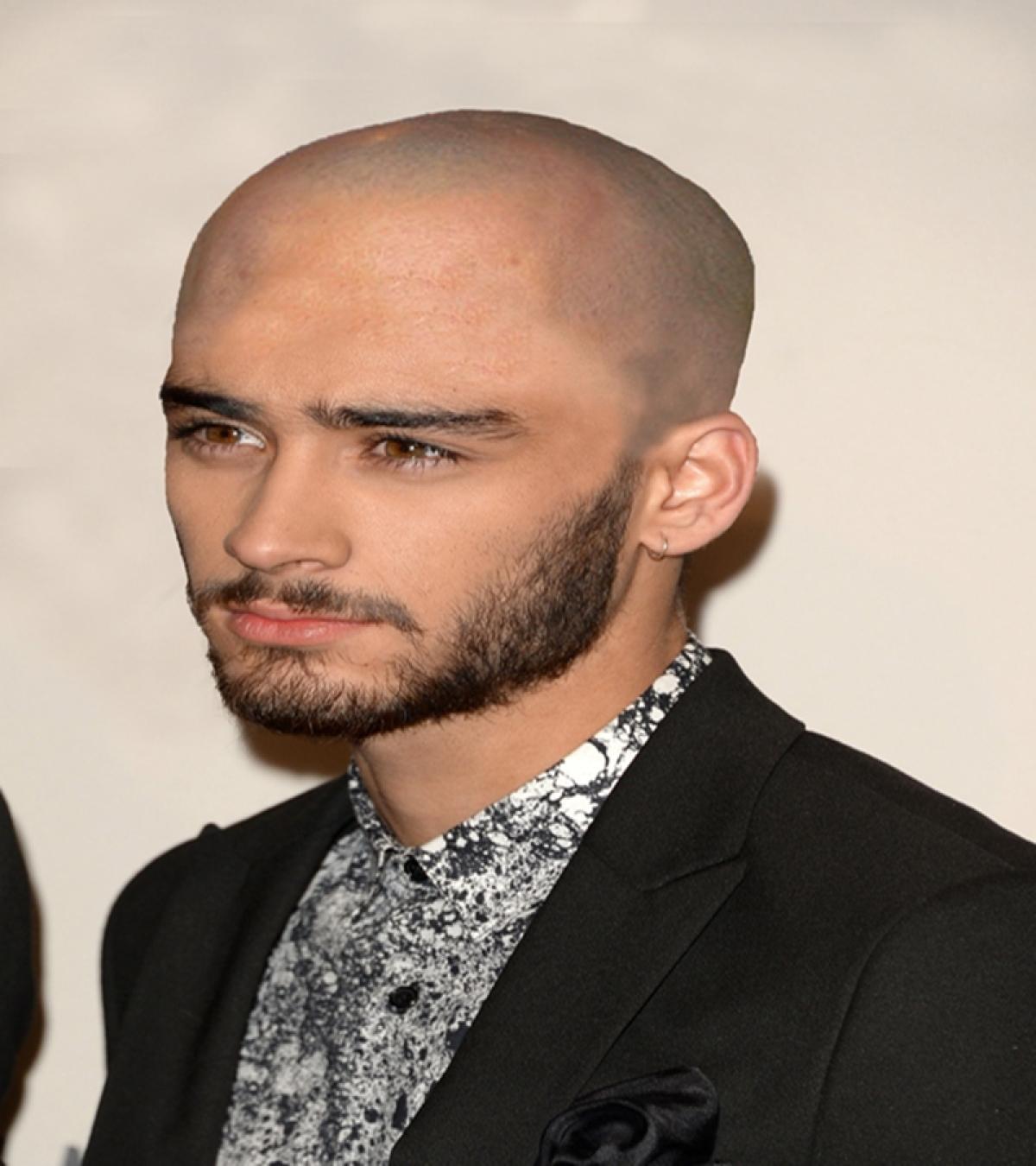 OMG! Zayn Malik went bald! Read why