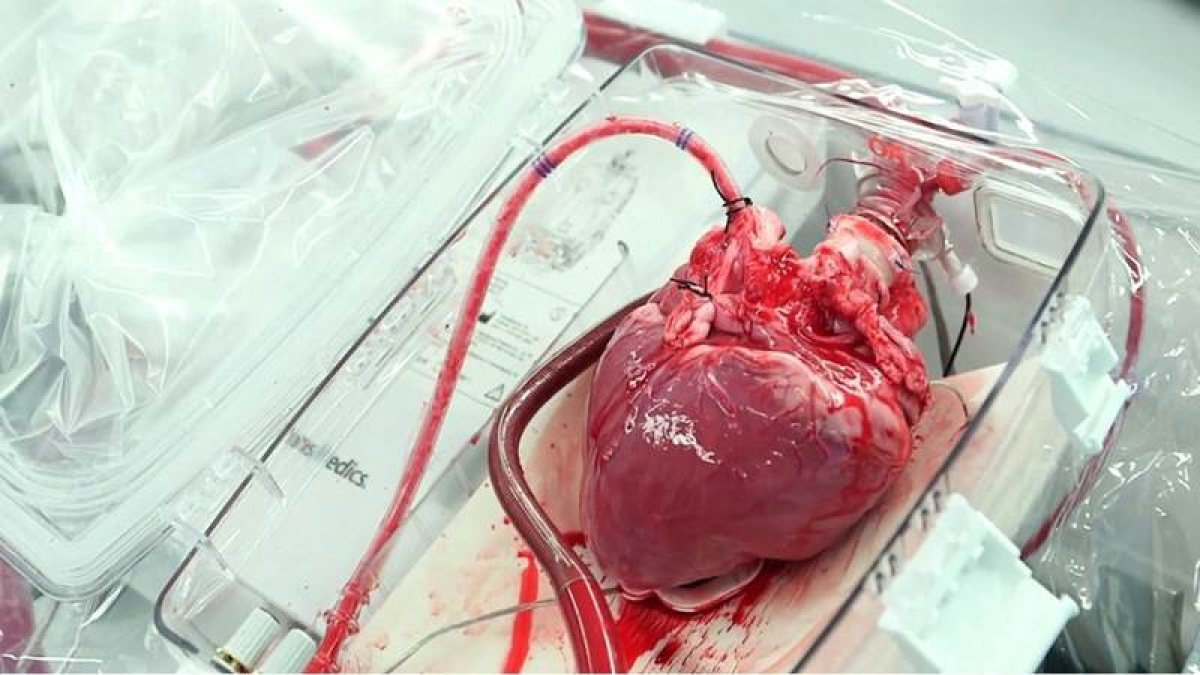 China develops artificial heart with rocket technology