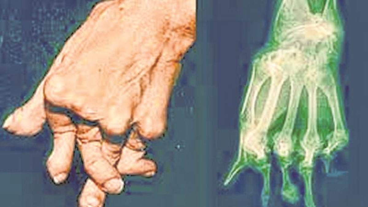 Mumbai: Rheumatoid arthritis affects women three times more compared to men