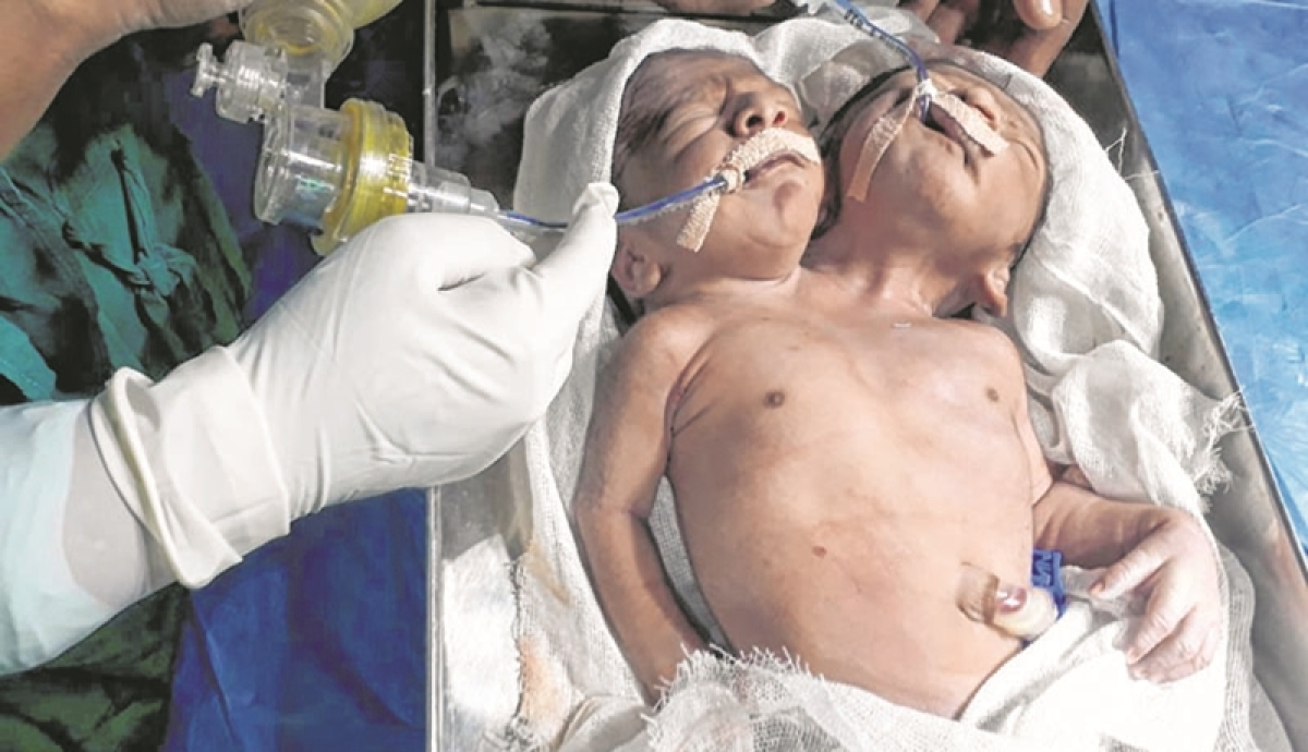 Maharashtra: 24 hours after birth, conjoined twins die in Beed due to respiratory disorder