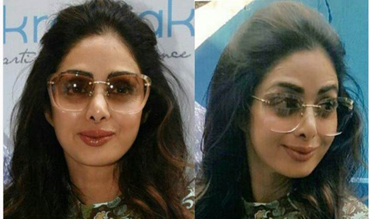 Lip job gone wrong! In a viral video Sridevi's lips look completely odd