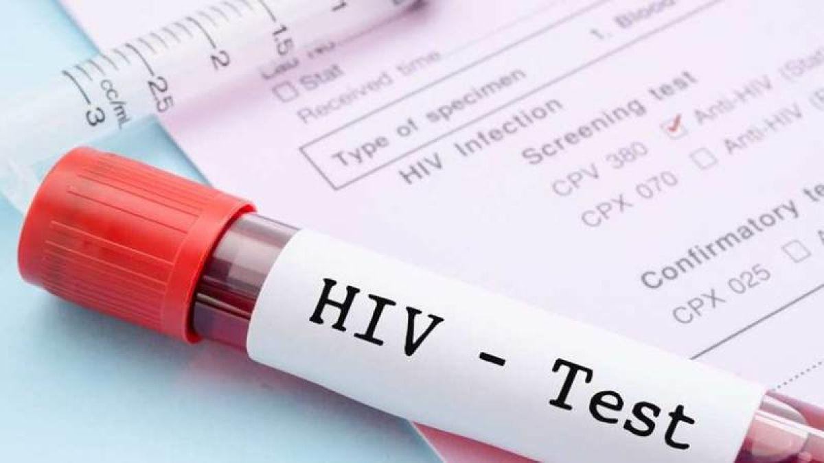Government implements HIV and AIDS Act 2017