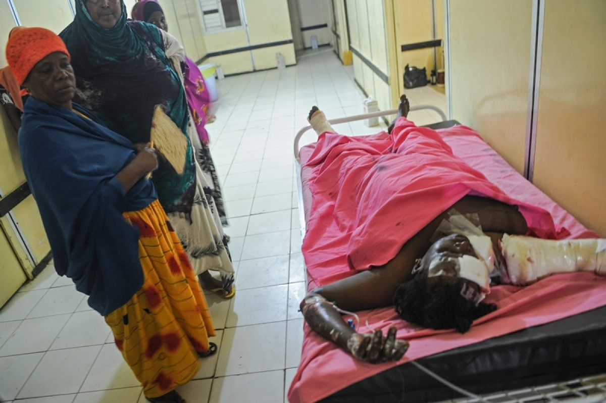 A woman injured by the car bomb attack receives medical treatment at Madina Hospital in Mogadishu, Somalia, on February 23, 2018.  At least 18 people were killed after two car bombs exploded in the city. / AFP PHOTO / Mohamed ABDIWAHAB