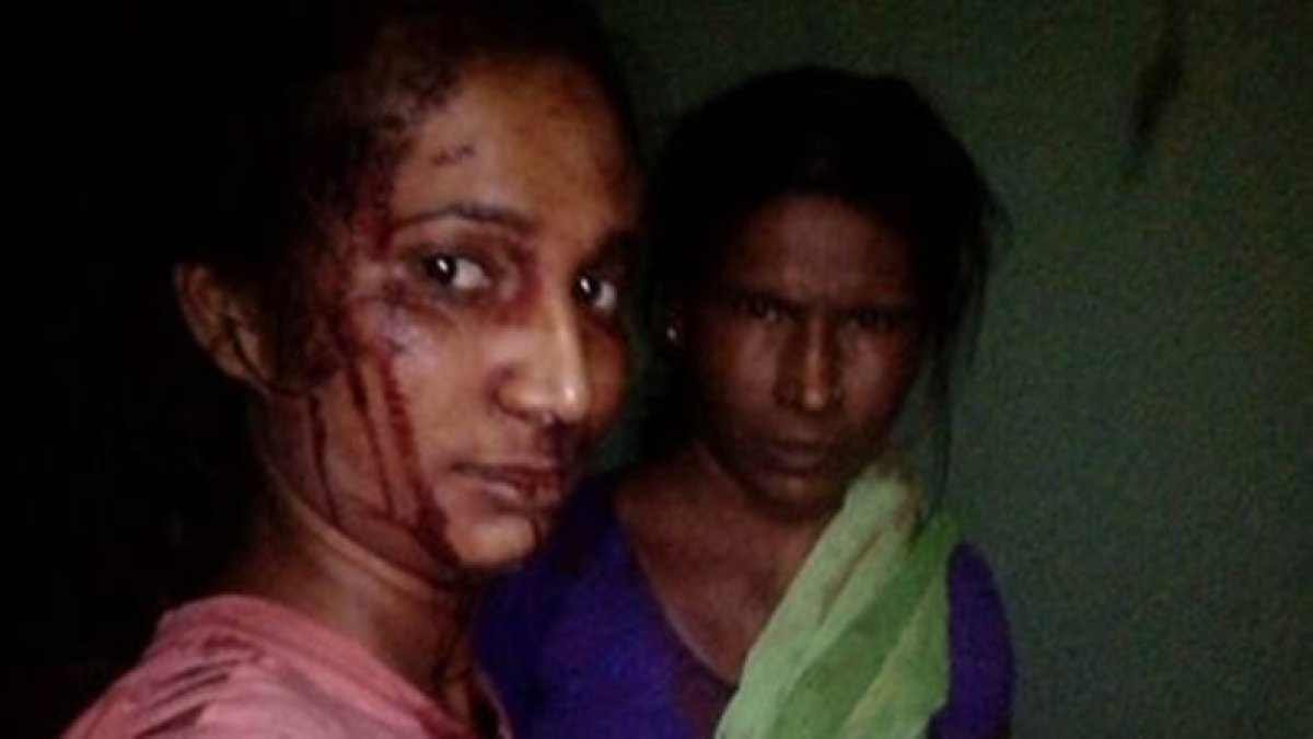 Bhandara woman who fought a leopard and survived is still waiting for financial help